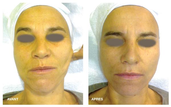 Résultats 24 K Gold Facial Avant-Après